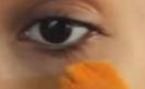mörka ringar under ögonen
