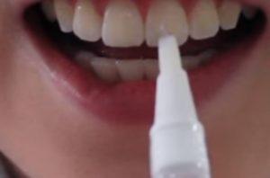 bleka tänderna penna